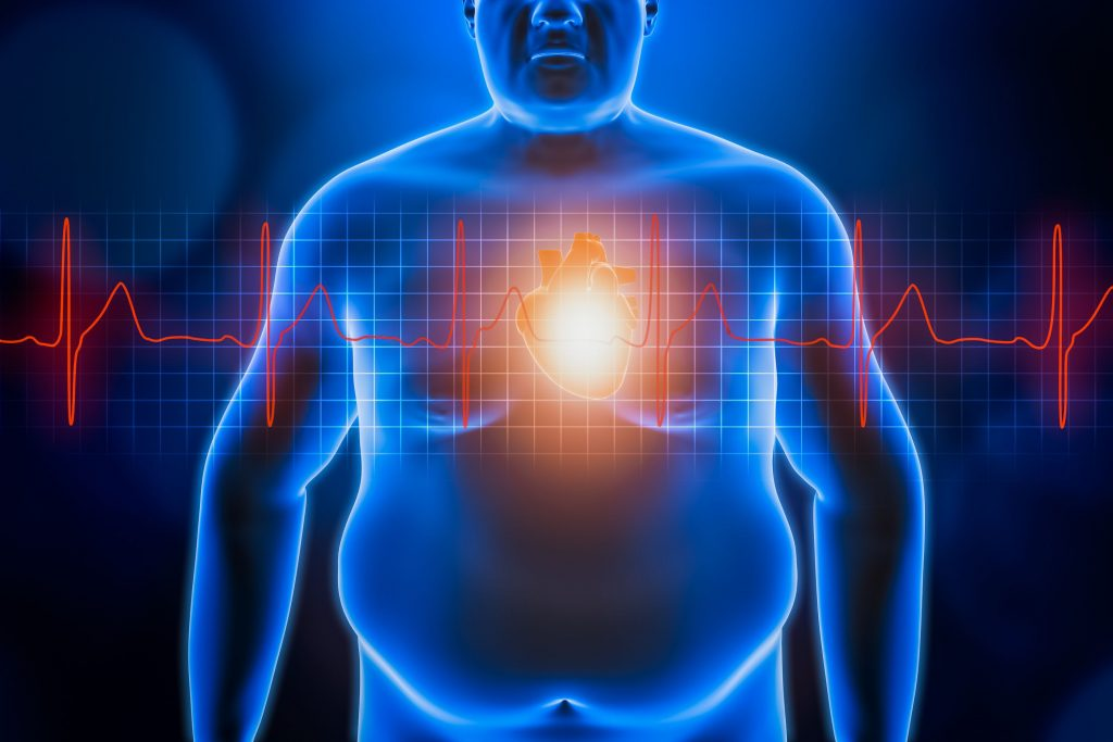 Obesity-and-Covid-19-reduce-risk-with-healthy-diet-habits-The-Guardian-overweight-blue-man.jpg